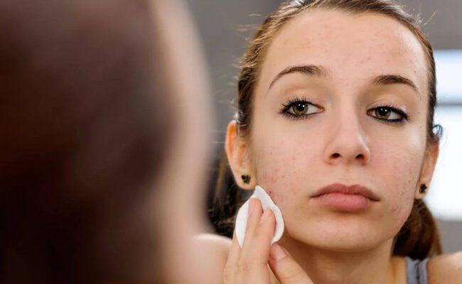 Přirozené způsoby boje proti akné